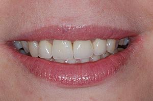 Nowy uśmiech po zakończeniu leczenia
